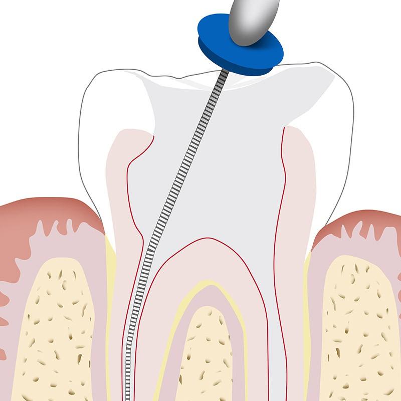 Endodonzia in microscopia